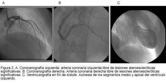 Miocardiopatía por estres